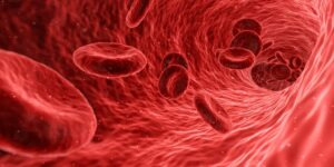 Anemias: main causes of anemia