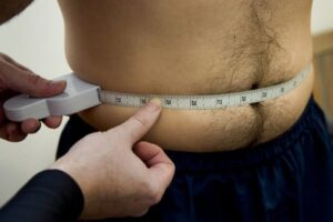 Accumulations of adipose and abdominal fat in men
