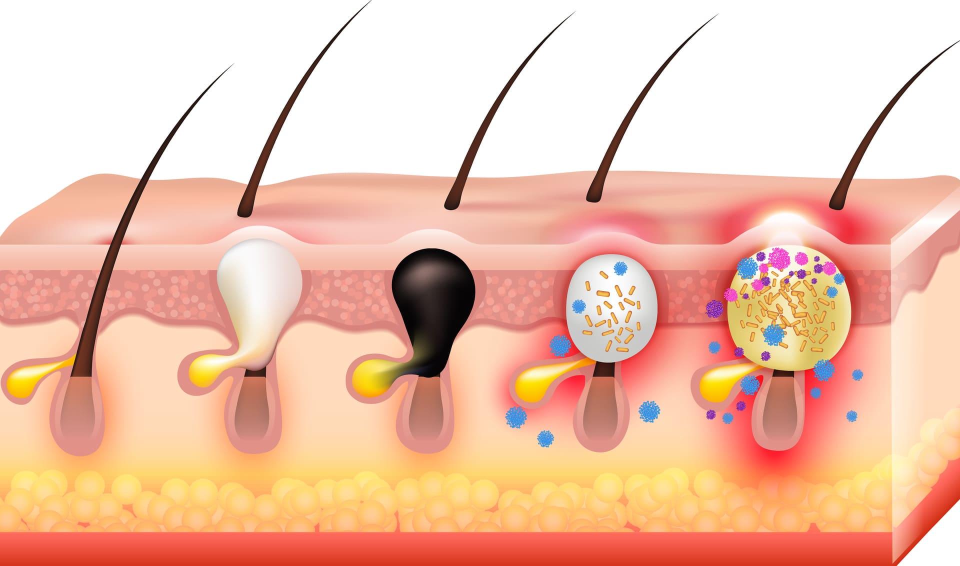 Come si manifesta l'acne giovanile