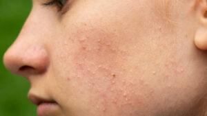 What is juvenile acne