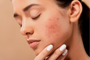 What is female hormonal acne