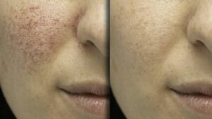 Results of the cure of rosacea