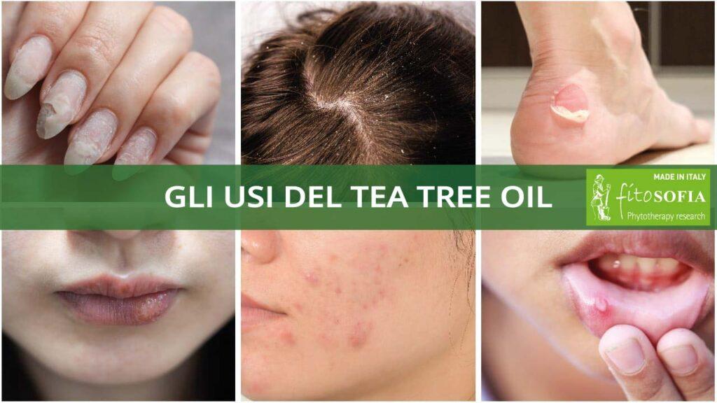 tea tree oil usi